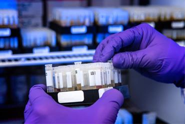 A scientist prepares patients' samples for SARS-CoV-2 antibody testing.